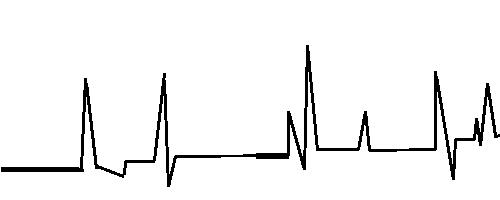 株価イナゴパターンB